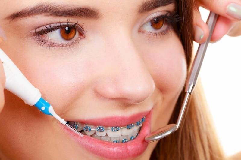 Smiling Girl Getting Orthodontist Cleaning of Blue Braces